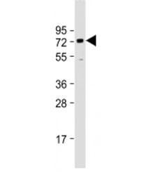 Western blot testing of human HeLa cell lysate with BANP antibody at 1:1000. Predicted molecular weight: 56 kDa, observed here at ~70 kDa.