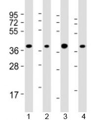 Western blot testing of human 1) HepG2, 2) Jurkat, 3) Li-7 and 4) RPMI-8226 cell lysate with ARHGEF39 antibody at 1:2000. Predicted molecular weight: 38 kDa.