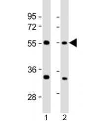 Western blot testing of human 1) 293T/17 and 2) HeLa cell lysate with AAAS antibody at 1:2000. Predicted molecular weight: 60 kDa.