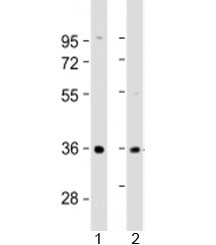 Western blot testing of human 1) liver and 2) SK-BR-3 cell lysate with AKR7A3 antibody at 1:2000. Predicted molecular weight: 37 kDa.