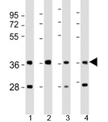 Western blot testing of human 1) 293T/17, 2) liver, 3) HepG2 and 4) SK-BR-3 cell lysate with AKR7A3 antibody at 1:2000. Predicted molecular weight: 37 kDa.