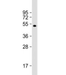 Western blot testing of recombinant protein with AKAP13 antibody at 1:8000.