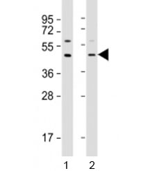 Western blot testing of human 1) A549 and 2) HepG2 cell lysate with APOL3 antibody at 1:2000. Predicted molecular weight: 44 kDa.