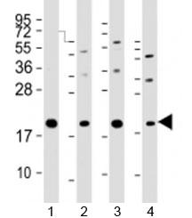 Western blot testing of human 1) HeLa, 2) PC-3, 3) T47D and 4) U-2OS cell lysate with APC11 antibody at 1:2000. Predicted molecular weight: ~10 kDa (Q9NYG5-1) or ~20 kDa (Q9NYG5-2).