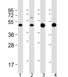 Western blot testing of 1) rat C6 cell lysate, 2) human SH-SY5Y cell lysate, 3) human brain lysate and 4) mouse brain lysate with GLUT3 antibody at 1:2000. Predicted molecular weight: 54 kDa.
