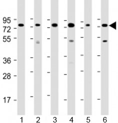 Western blot testing of human 1) Daudi, 2) HepG2, 3) Jurkat, 4) K562, 5) MOLT-4 and 5) Raji cell lysate with PABPC3 antibody at 1:2000. Predicted molecular weight: 70 kDa.