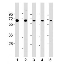 Western blot testing of PSMD3 antibody at 1:2000: Lane 1) human Jurkat, 2) (h) HeLa, 3) (h) HepG2, 4) (h) MCF-7 and 5) mouse NIH3T3 cell lysate. Predicted molecular weight ~61 kDa.