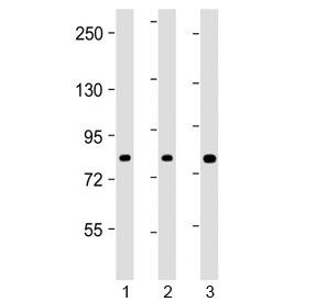 Western blot testing of human 1) HEK293, 2) HT-29 and 3) U-2 OS cell lysate with ADD1 antibody at 1:2000. Predicted molecular weight ~81 kDa.