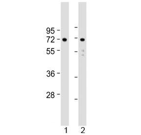 Western blot testing of human 1) U-251 MG and 2) U-87 MG cell lysate with APLP1 antibody at 1:2000. Expected molecular weight: 76 kDa (unmodified), ~86 kDa (soluble/glycosylated form), 92~95 kDa (mature form).