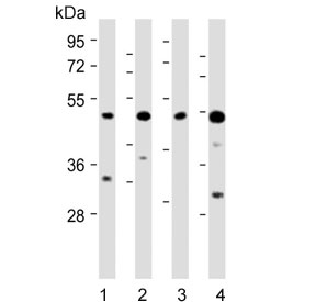 Western blot testing of 1) human PC-3, 2) human U-251 MG, 3) mouse NIH 3T3 and 4) mouse heart lysate with AP1M1 antibody. Predicted molecular weight ~49 kDa.