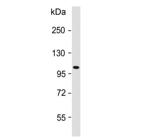 Western blot testing of human skeletal muscle lysate with ATP1A2 antibody. Predicted molecular weight ~112 kDa.