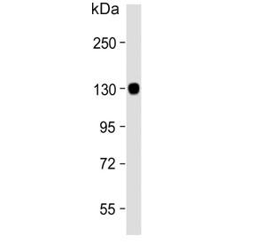 Western blot testing of human brain lysate with Autotaxin antibody. Expected molecular weight: 99-125 kDa depending on glycosylation level.