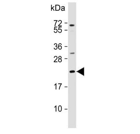 Western blot testing of human MCF7 cell lysate with Adrenomedullin antibody.