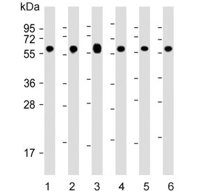 Western blot testing of human 1) Jurkat, 2) HeLa, 3) HepG2, 4) MCF7, 5) mouse NIH 3T3 and 6) rat PC-12 cell lysate with 60 kDa Heat Shock Protein antibody. Predicted molecular weight ~60 kDa.