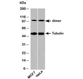 Western blot testing of human samples with beta Tubulin antibody at 2ug/ml. Predicted molecular weight: 50-55 kDa.