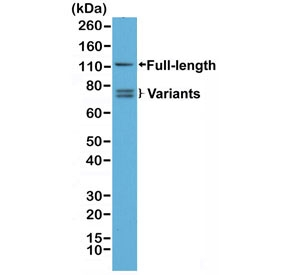 Western blot testing of human 22RV1 cell lysate with recombinant Androgen Receptor antibody. Full length Androgen Receptor and splice variants may be observed.
