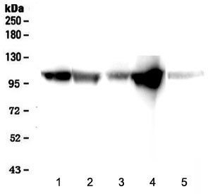 Western blot testing of 1) rat heart, 2) rat skeletal muscle, 3) mouse heart, 4) mouse skeletal muscle and 5) human placenta lysate with alpha-Actinin antibody at 0.5ug/ml. Predicted molecular weight ~105 kDa.