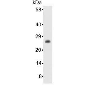 Western blot testing of human recombinant protein with Bcl-2 antibody at 0.5ug/ml. Predicted molecular weight ~26 kDa.
