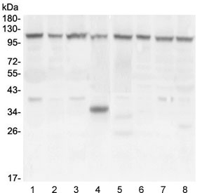 Western blot testing of human 1) U-87 MG, 2) U-2 OS, 3) PC-3, 4) A549, 5) HeLa, 6) T-47D, 7) HepG2 and 8) Caco-2 cell lysate with HIF1a antibody at 0.5ug/ml. Routinely observed molecular weight: 100~120 kDa.