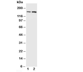Western blot testing of NMDAR2B antibody and Lane 1:  rat brain;  2: mouse brain. Predicted molecular weight ~166kDa.