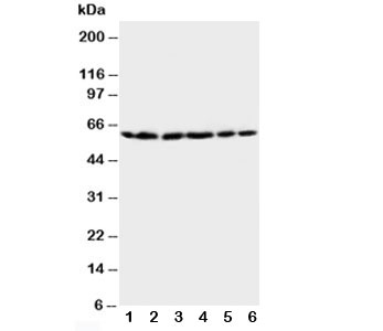 Western blot testing of HSP60 antibody and Lane 1:  rat brain;  2: rat liver;  3: CEM;  4: HeLa;  5: SMMC-7721;  6: COLO320 cell lysate