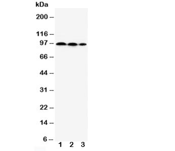 Western blot testing of HIF2a antibody and Lane 1:  HeLa;  2: MCF-7;  3: Jurkat cell lysate