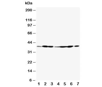 Western blot testing of Annexin A2 antibody and Lane 1:  rat testis;  2: rat lung;  3: rat ovary;  4: MCF-7;  5: SMMC-7721;  6: A549;  7: Jurkat
