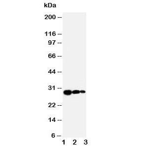 Western blot testing of TIMP1 antibody and Lane 1:  recombinant human protein 10ng;  2: 5ng;  3. 2.5ng