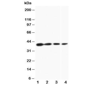 Western blot testing of Bag-1 antibody and Lane 1:  recombinant human protein 10ng;  2: 5ng;  3: 2.5ng;  4: human MCF-7 cell lysate. Predicted molecular weight ~39 kDa.