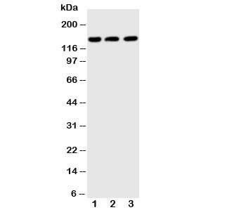 Western blot testing of ABCB11 antibody and Lane 1:  rat liver;  2: (h) SMMC-7721;  3: (h) MB231 cell lysate