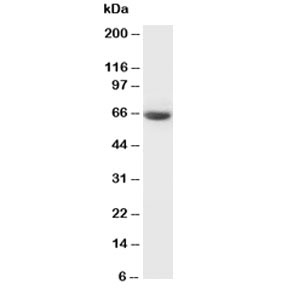Western blot testing of GAD65 antibody and rat brain tissue lysate. Predicted molecular weight ~65 kDa.