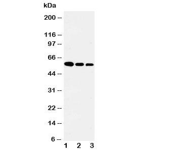 Western blot testing of Fetuin-A antibody and Lane 1:  recombinant human protein 10ng;  2: 5ng;  3: 2.5ng
