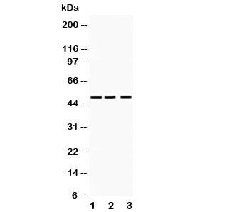 Western blot testing of ANGPTL4 antibody and Lane 1:  human placenta;  2: SMMC-7721;  3: HeLa lysate.  Expected molecular weight: 50-55 kDa.