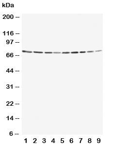 Western blot testing of Annexin VI antibody and Lane 1:  rat ovary;  2: rat liver;  3: rat intestinum tenue;  4: rat brain;  5: human A549;  6: human Jurkat;  7: human Raji;  8: human CCRF-CEM;  9: human SMMC-7721 cell lysate. Expected molecular weight: 67-76 kDa.