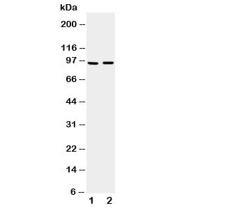 Western blot testing of ADAMTS4 antibody and Lane 1:  rat brain;  2: mouse brain tissue lysate