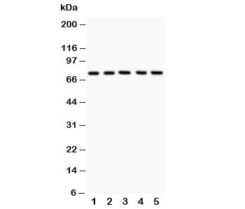 Western blot testing of 12 Lipoxygenase antibody and Lane 1:  A549;  2: MCF-7;  3: COLO320;  4: Jurkat;  5: HeLa;  Predicted size: 75KD;  Observed size: 75KD