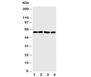 Western blot testing of ANGPTL1 antibody and Lane 1:  A549;  2: SW620;  3: MCF-7;  4: MM231 cell lysate