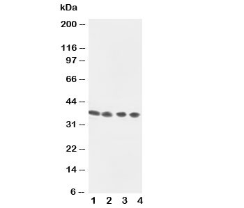 Western blot testing of Annexin VIII antibody and Lane 1:  Jurkat;  2: SMMC-7721;  3: Jurkat;  4: COLO320 cell lysate. Predicted molecular weight ~37 kDa.