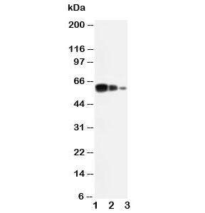 Western blot testing of ADAM10 antibody and Lane 1:  recombinant human protein 10ng;  2: 5ng;  3:  2.5ng