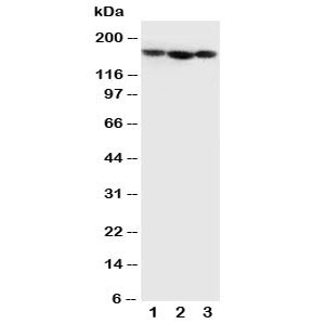 Western blot testing of human 1) MCF-7, 2) SGC-7901 and 3) SW620 cell lysate with Collagen IV antibody. Predicted molecular weight ~160 kDa but may be observed at a larger size due to glycosylation.