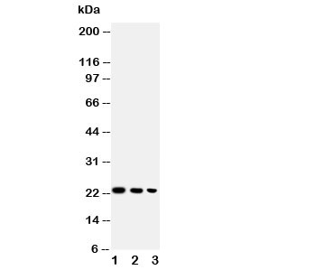 Western blot testing of BAFF antibody and Lane 1:  recombinant human protein 10ng;  2: 5ng;  3: 2.5ng