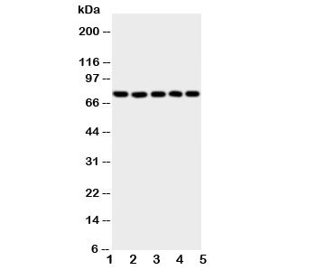 Western blot testing of 5-Lipoxygenase antibody and Lane 1:  SW620;  2: Jurkat;  3: COLO320;  4: A549;  5: MCF-7 cell lysate.  Predicted/observed size ~78KD
