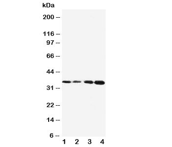 Western blot testing of Protein C antibody and Lane 1:  Jurkat;  2: CEM;  3: SMMC-7721;  4: HeLa cell lysate.  Observed size: 35KD, predicted size: 52KD