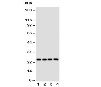 Western blot testing of alpha Lactalbumin antibody and Lane 1:  MCF-7;  2: MM231;  3: MM453;  4: HeLa cell lysate