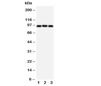 Western blot testing of ABCB6 antibody and Lane 1:  HeLa;  2: MCF-7;  3: A549 cell lysate.  Predicted size: 94KD.