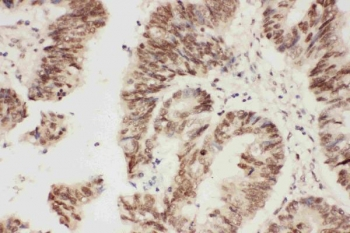 IHC staining of FFPE human rectal cancer with ALK antibody. HIER: boil tissue sections in pH6 citrate buffer for 20 min and allow to cool before testing.