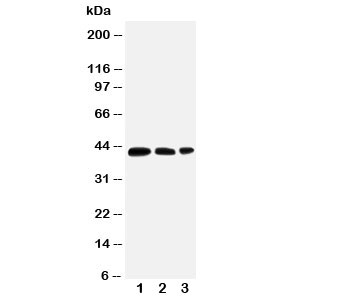 Western blot testing of AQP2 antibody and Lane 1:  MCF-7;  2: SW620;  3: HT1080 cell lysate.  The protein is routinely visualized from 29-46kDa depending on glycosylation level.