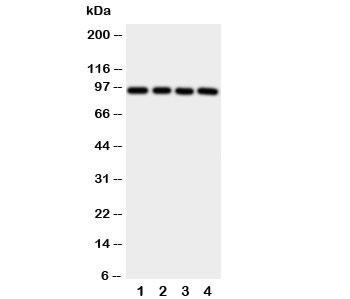 Western blot testing of Aryl hydrocarbon Receptor antibody and human samples 1:  PANC;  2: HeLa;  3: MCF-7;  4: HT1080 cell lysate.  Predicted molecular weight ~ 95kDa.