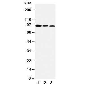 Western blot testing of AHR antibody and mouse samples:  1. brain;  2. heart;  3. liver tissue lysate.  Predicted molecular weight ~ 95kDa.