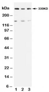 Western blot testing of ATM antibody and Lane 1:  rat testis;  2: U87;  3: MCF-7